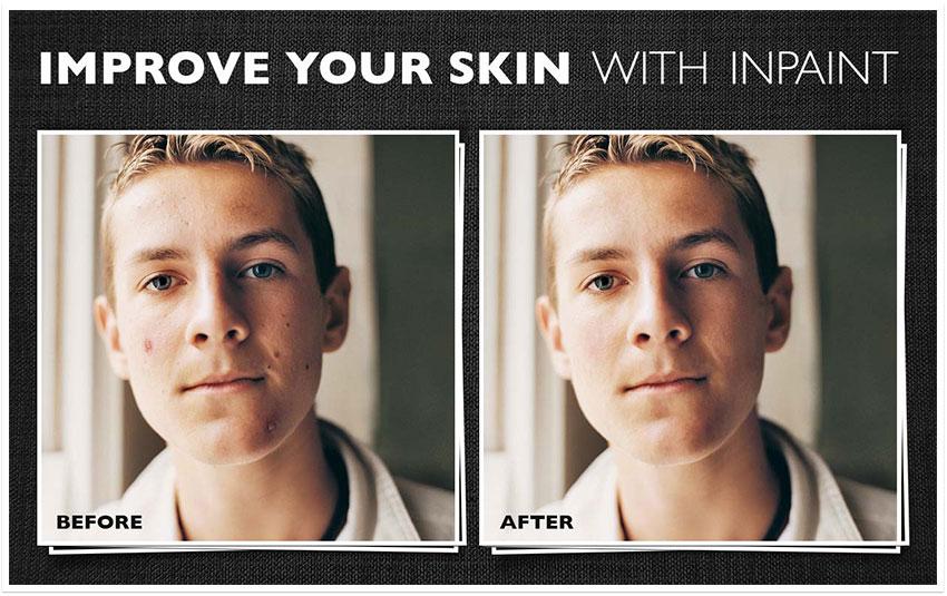 inpaint improve skin